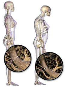 osteoporosis and Pilates